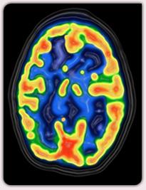 Les neurosciences, observation grace à l'imagerie IRM d'une impressionnante activité cérébrale pendant la transe